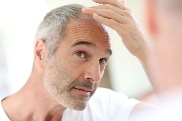 comment cacher la perte de ses cheveux #1001perruques